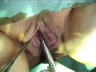 Vaginal Surgery And Fist