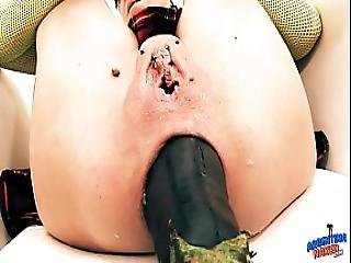 Insanely Huge Prolapse Cervix Exposure. Eggplant Penetratio