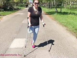 Amputee Woman