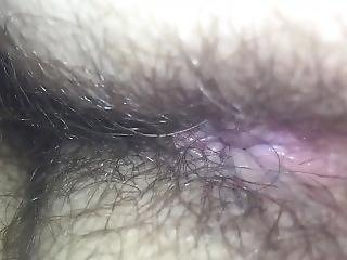 Check Out Her Hairy Asshole