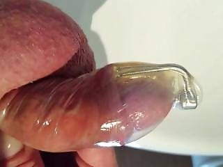 ingrown hairs at the clitoris