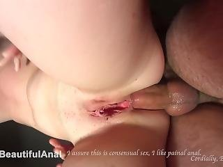Extremely Screaming Painful Anal Sex Hd 4k Crying Teen Anal: Ass Destroyed.