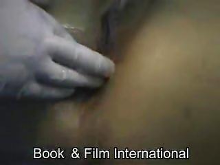Anal Treatment (enema Machine)