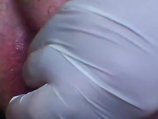 anal, grosse, fisting, trou béant, masturbation