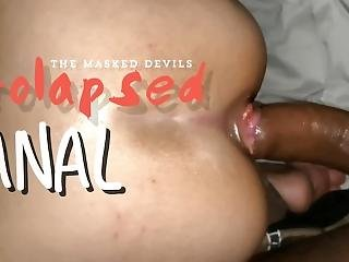 The Masked Devils: Fucking Queen Devil�s Prolapsed Ass W/ Hemorrhoids!