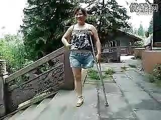 Amateur, Amputation