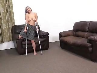 amputation, fetisch