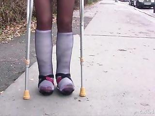 Double Short Leg Cast