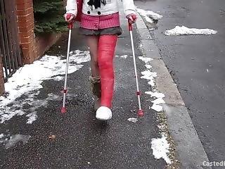 Winter Cast + Socks