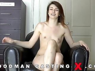 Casting 918