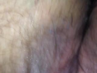 큰 음핵, 음핵, 성전환자