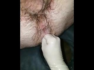 Anal Fisting 6